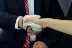 Nylon-Carbon-prothesenhand